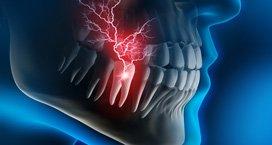 Zahnschmerz Wurzelkanalbehandlung